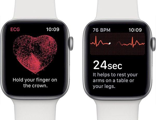 Tính năng ECG trên Apple watch giúp phát hiện tình trạng thiếu máu tim cục bộ mà bệnh viện không thể phát hiện.